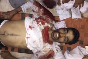 5 Manifestantes Pacíficos Martirizados en Sangrienta Represión de Fuerzas del RégimenBahreiní