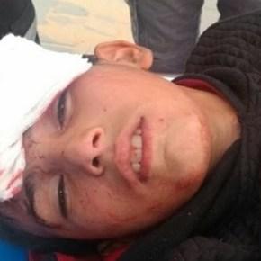 Catorce niños heridos en este viernes en las Marchas deRetorno